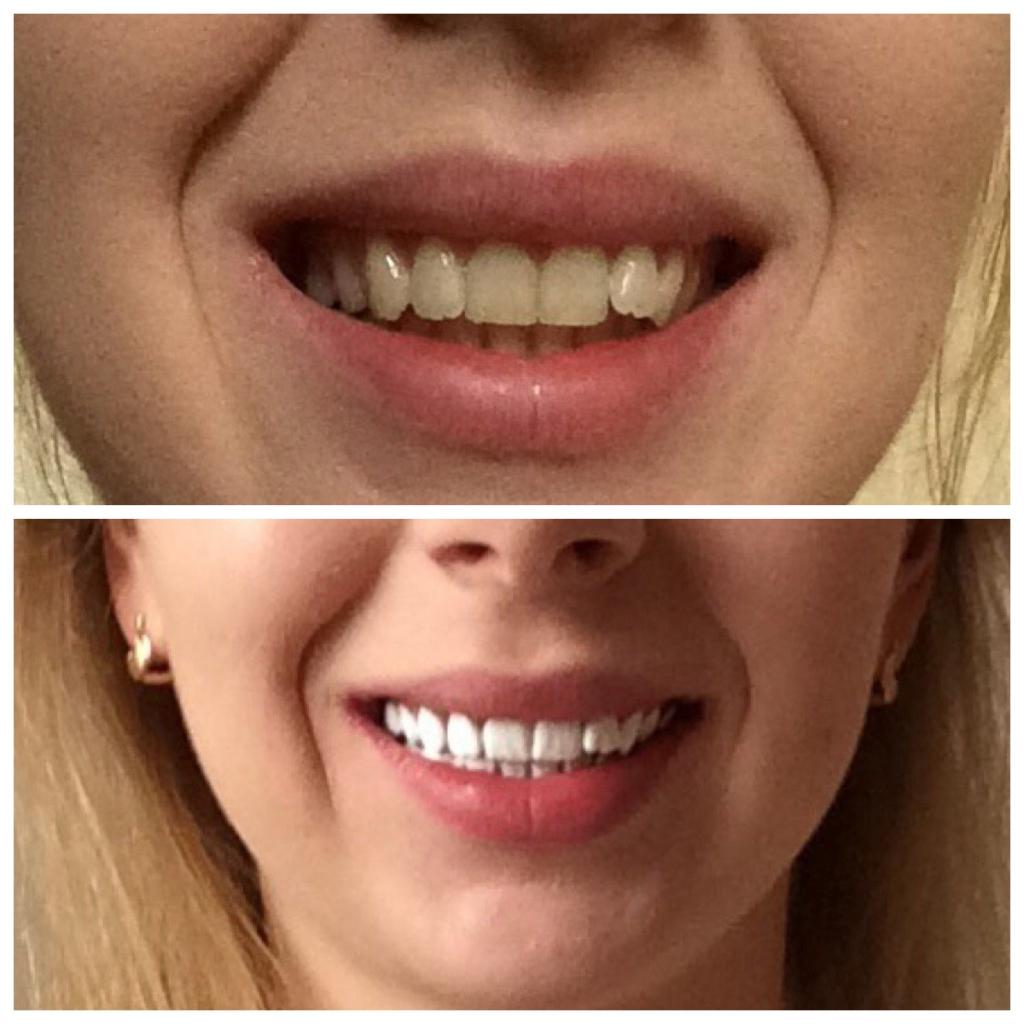 Эмаль для зубов Color professional - Великолепное средство! У меня нет слов!