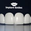 Implant Smiles - съемные виниры отзывы