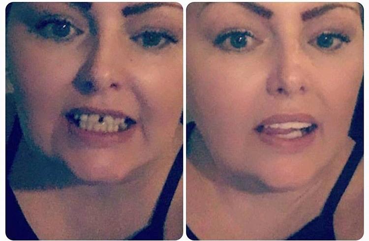 Implant Smiles - съемные виниры - Лучше чем ожидалось