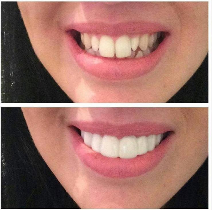 Implant Smiles - съемные виниры - Даже мне подошли