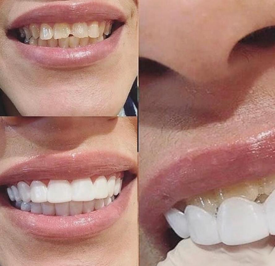 Implant Smiles - съемные виниры - и мне и мужу подошли. рекомендуем.