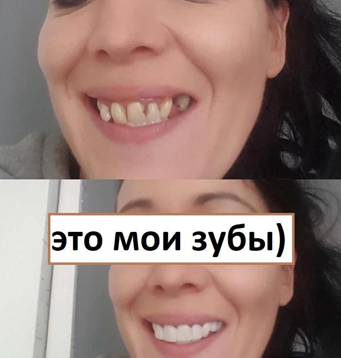 Implant Smiles - съемные виниры - Я их получила!