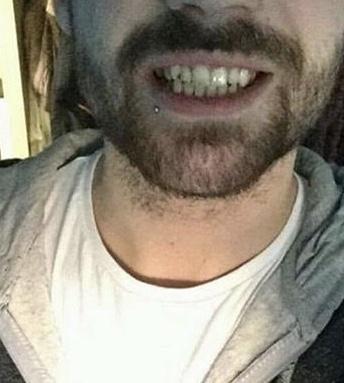 Implant Smiles - съемные виниры - Полезное изобретение