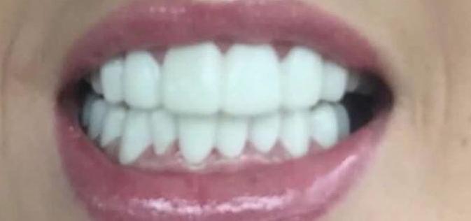Implant Smiles - съемные виниры - Сами смотрите на фото