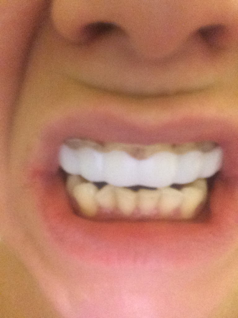 Implant Smiles - съемные виниры - Ужас!!!! Ужас!!