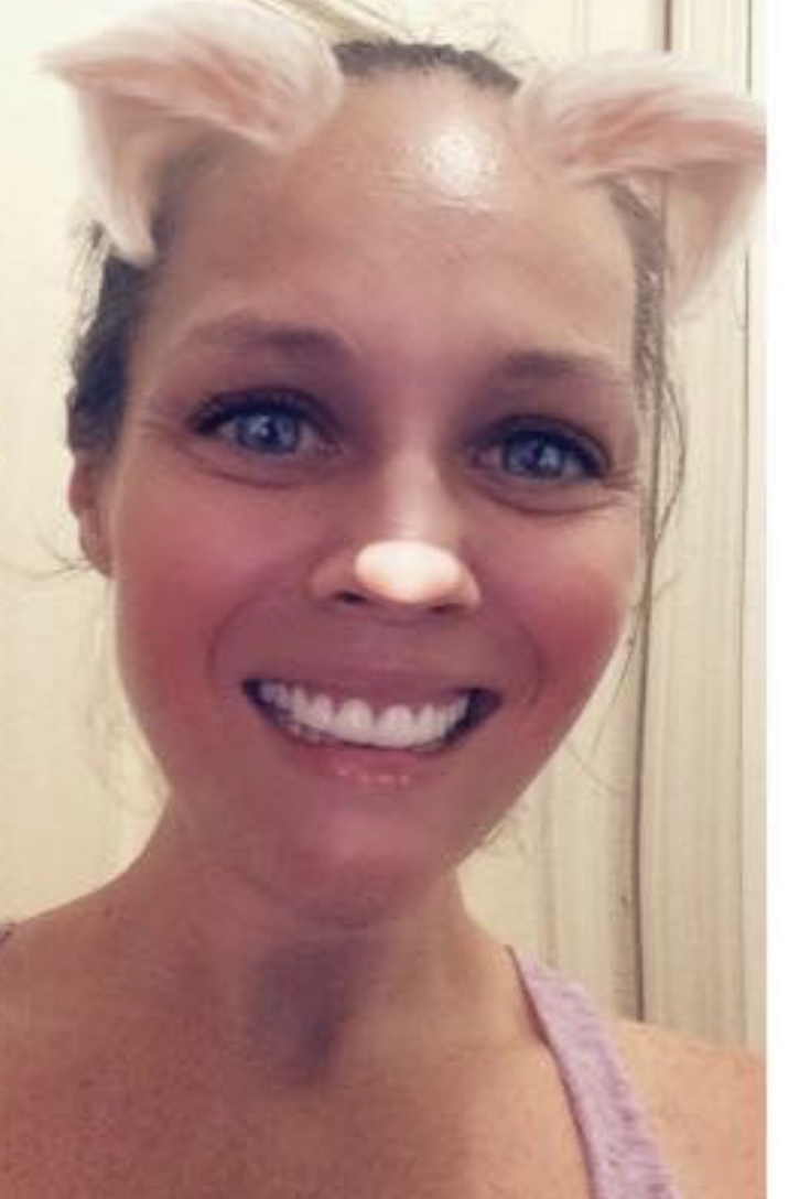 Implant Smiles - съемные виниры - Потрясающие зубки