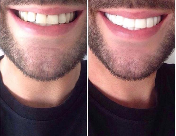 Implant Smiles - съемные виниры - Хорошие