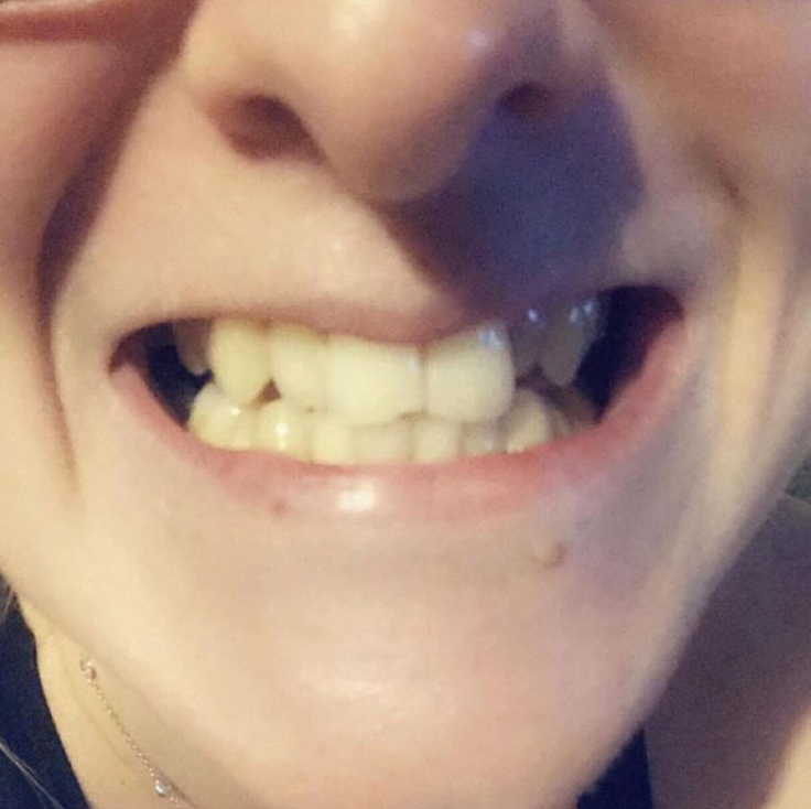 Implant Smiles - съемные виниры - Хороши но не для осень твёрдой пищи
