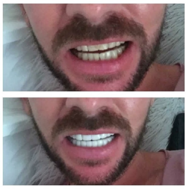 Implant Smiles - съемные виниры - Круто внешне