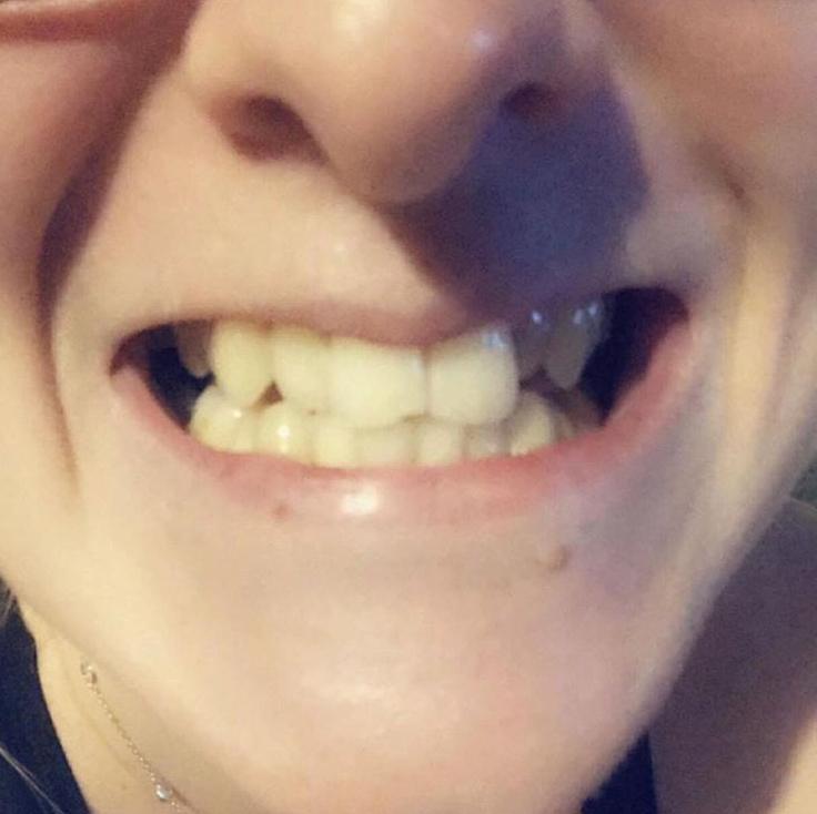 Implant Smiles - съемные виниры - Хороши, но не для очень твердой пищи