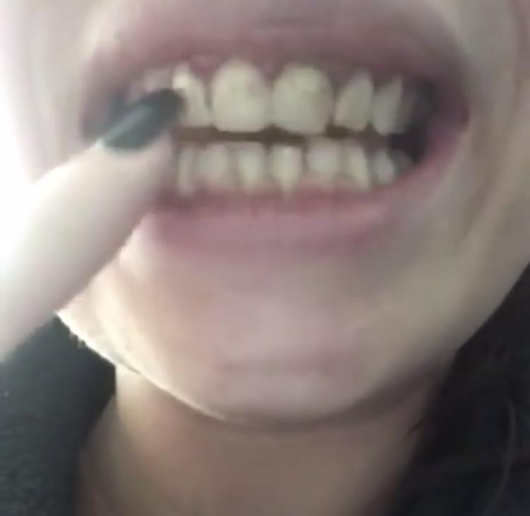 Implant Smiles - съемные виниры - Моя прелесть