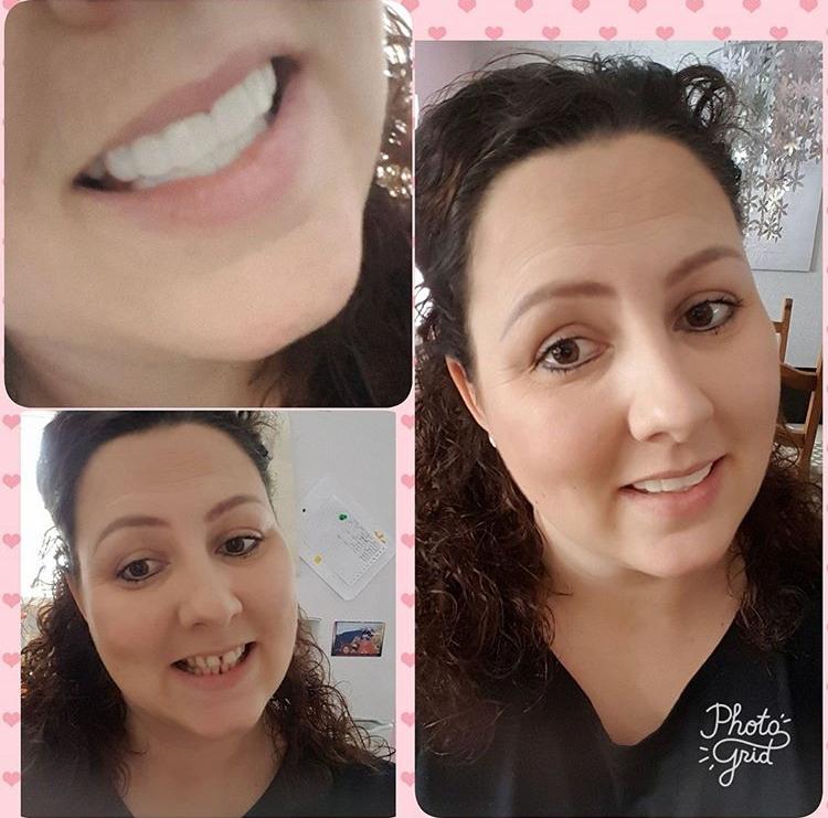 Implant Smiles - съемные виниры - Мои помощники