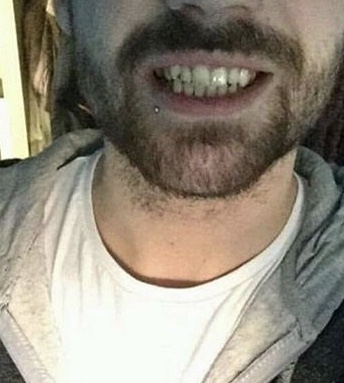 Implant Smiles - съемные виниры - IgorBarni