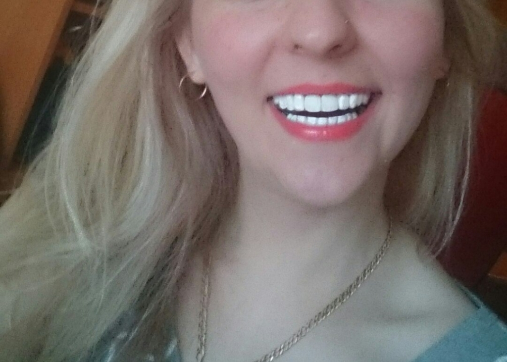 Implant Smiles - съемные виниры - ОСТЕРЕГАЙТЕСЬ ПОДДЕЛОК! Оригинал крут!