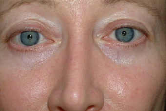 Блефаропластика - Избавилась от грыж под глазами!