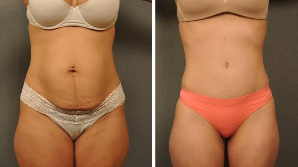 абдоминопластика после похудения бесплатно